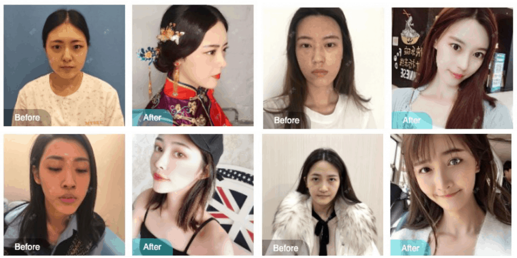 Chinese Plastic Surgery Trends You Need To Know About (2019)